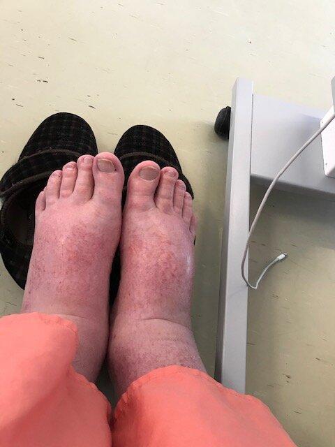 Dave's feet